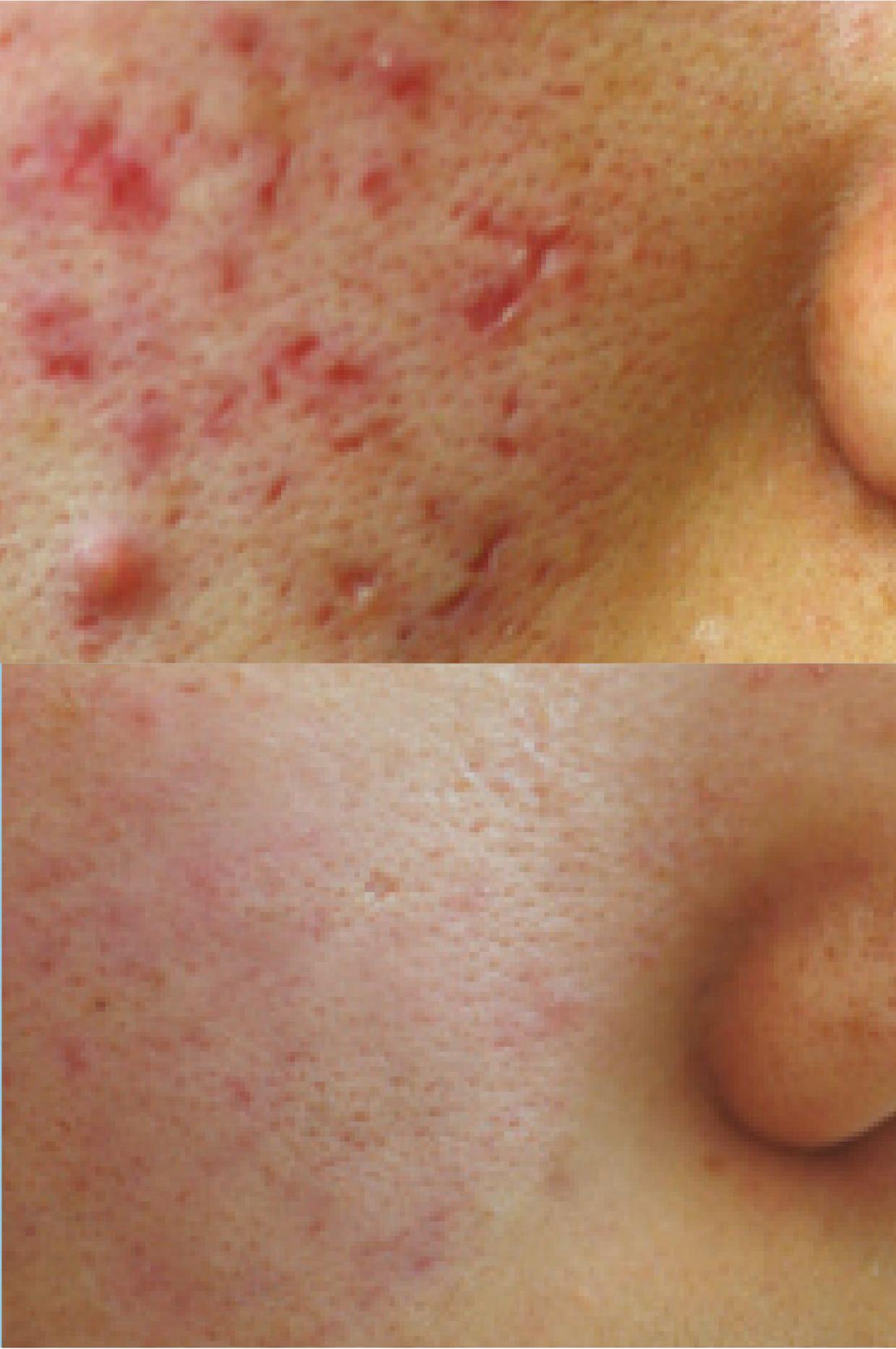 Acne treatment mississauga medical acne clinic lucie for Acne salon treatments