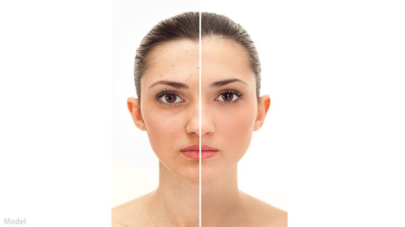 Improve-Skin-Tone-and-Texture1-e1459800782851