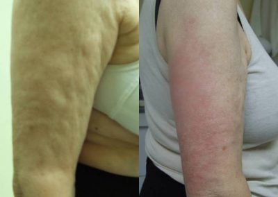 Body Contouring Laser