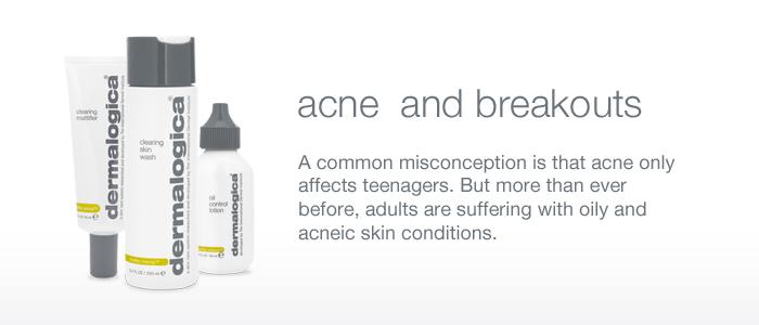 acne_and_breakouts0_acne_and_breakouts0_acne